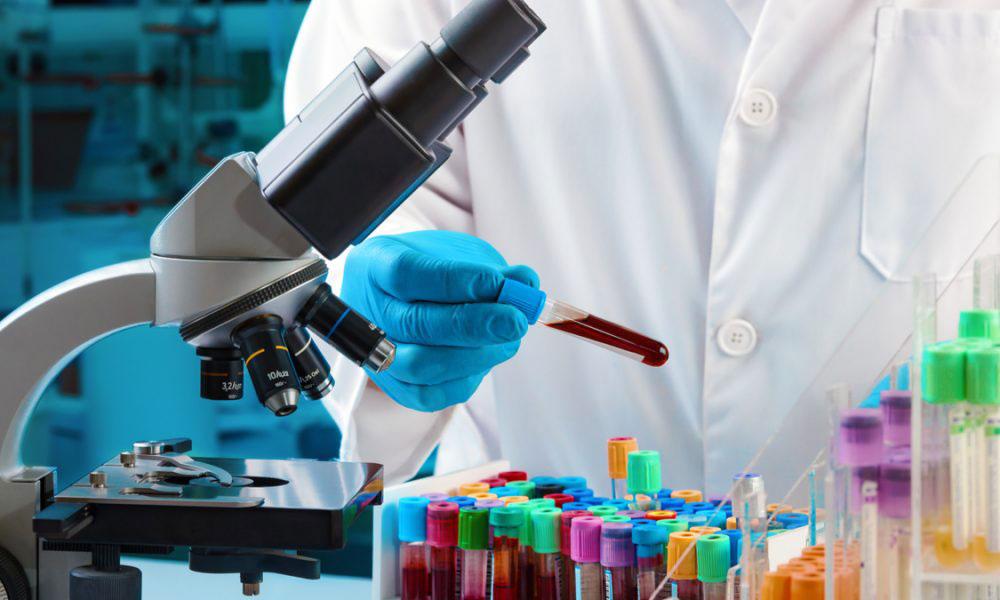 Edulab servicios hemostasia estudio de sangre